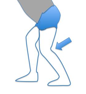 Image stretching 3